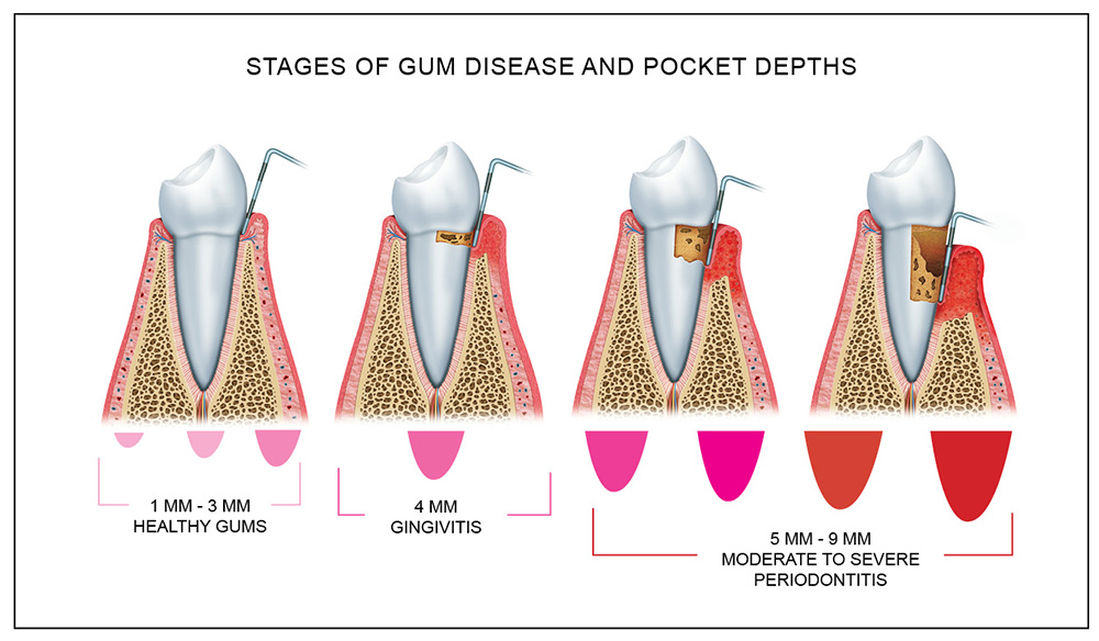 Periodontal Probe Measurements New Patients - What to...